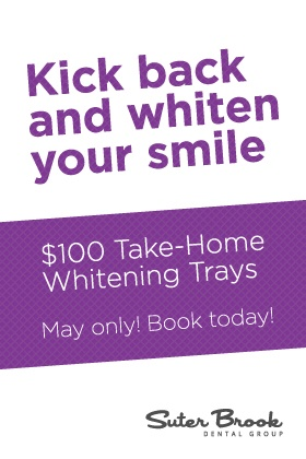 $100 take home whitening kit