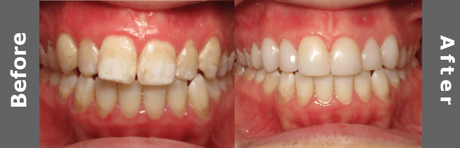White Teeth Book Cover : Suter brook dental group before after